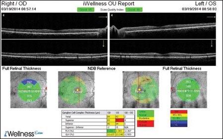 iwellness scan